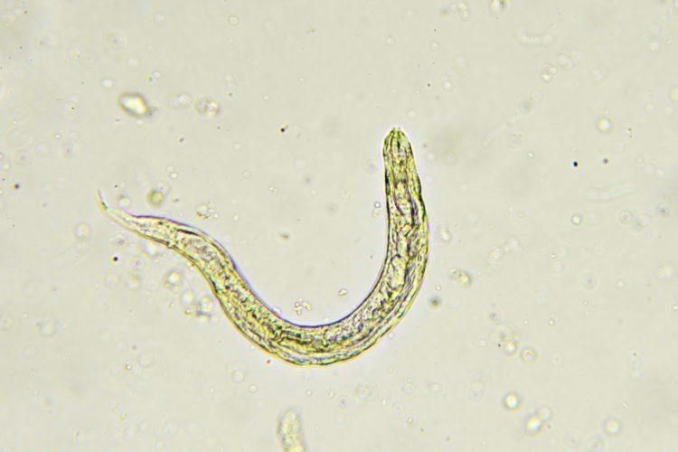 Bye Bye Pinworms