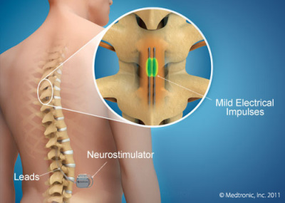 Spinal Cord Stimulator (SCS)