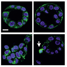 Prostate cells under normal conditions (top) and stiff conditions (bottom). Arrow = aggressive cell.