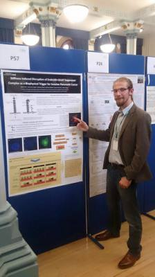 Kamil Talar presents our new work at Pancreas 2016 Conference