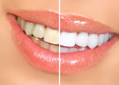 Free Teeth Whitening For Life!