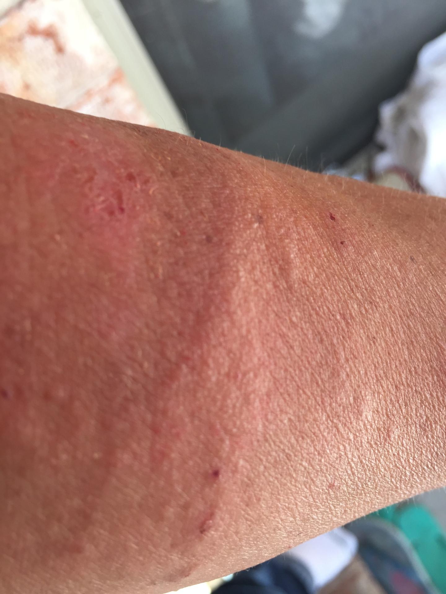 Skin Rash before treatment