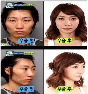 ผู้หญิงที่มีใบหน้าเป็นผู้ชาย !!