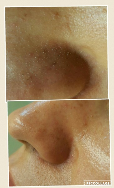 Microdermabrasion (Before and After)