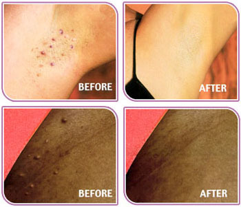 Microdermabrasion for Ingrown hair