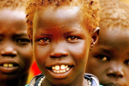 "Africans can Can Also Carry ""Red"" Hair"