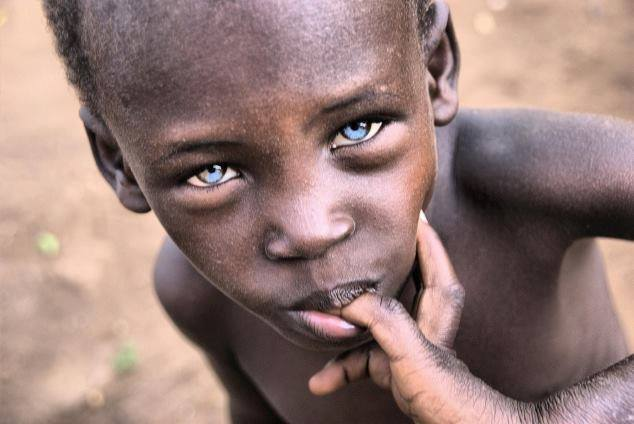 "Africans can Produce Blue Eyes or any ""Eye Color"""