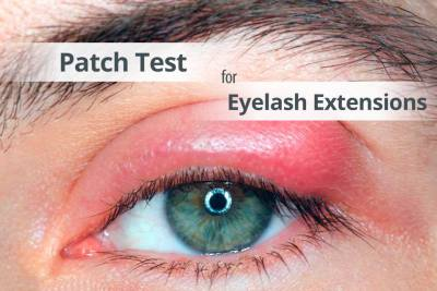 allergic reaction to tint or eyelash extensions