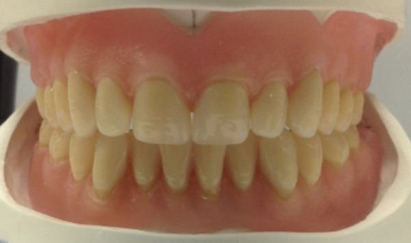 Complete upper and lower acrylic dentures