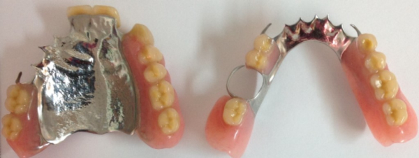 Upper and lower cobalt-chrome plates partial dentures