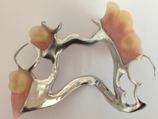 Partial upper cobalt-chrome skeleton framework denture