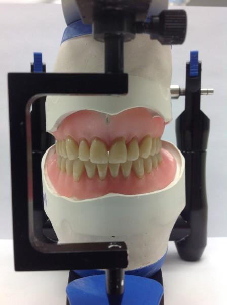 Dentures on the articulator