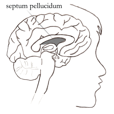 My Favorite Brain Abnormality