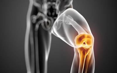 Minimally invasive joint surgery