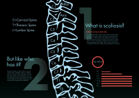 Scoliosis Poster