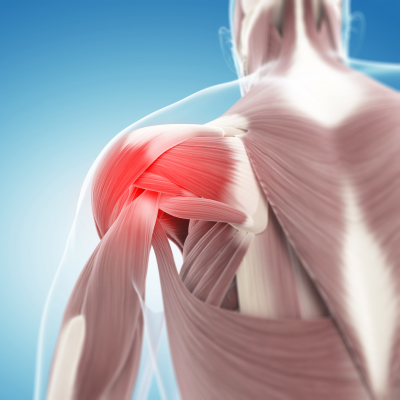 Exercise Management of Torn Rotator Cuff