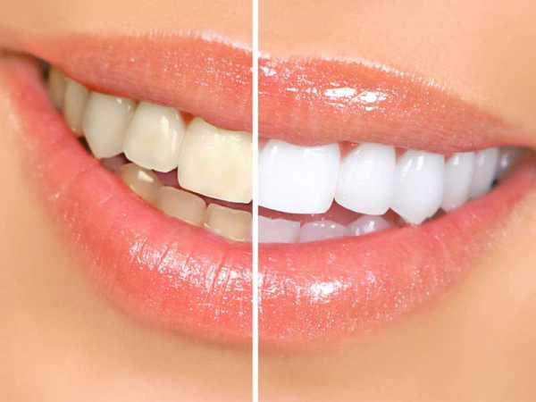 Cara memutihkan gigi secara cepat dan aman