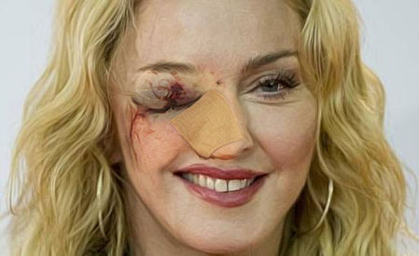 Madonna Kicked By Mule - Loses British Accent!