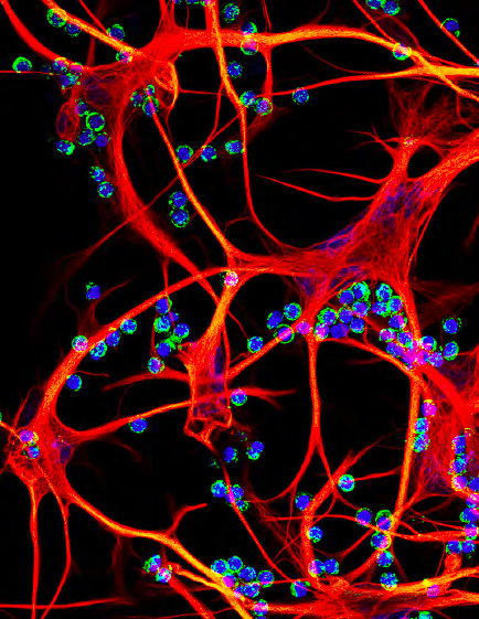 Cover image: Reactive astrocyte cluster containment of activated leukocytes. Courtesy of Candice Chapouly, Department of Neurology at Mount Sinai School of Medicine