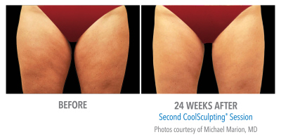 Female Inner Thigh treatment