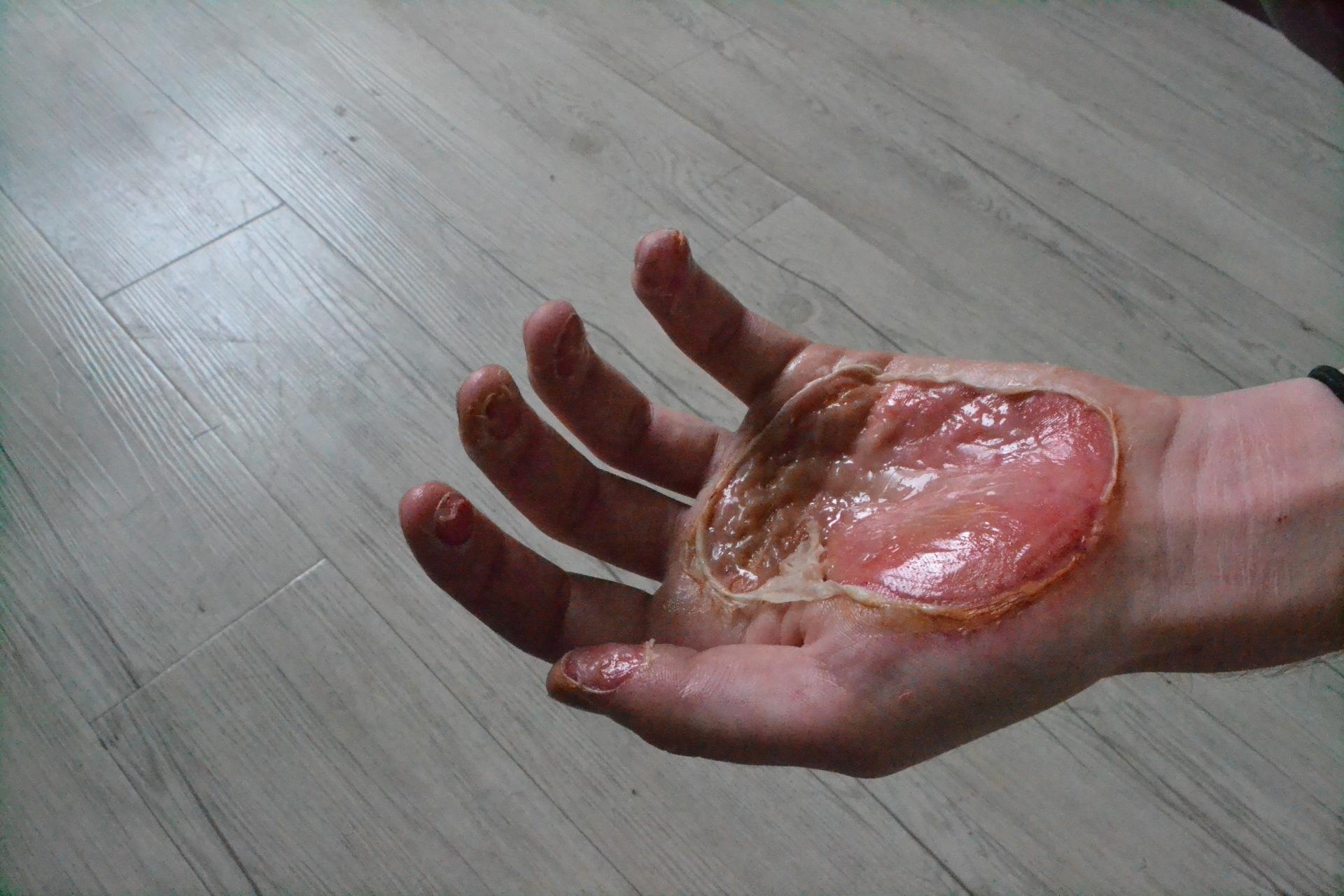 Croydon Crags Hands