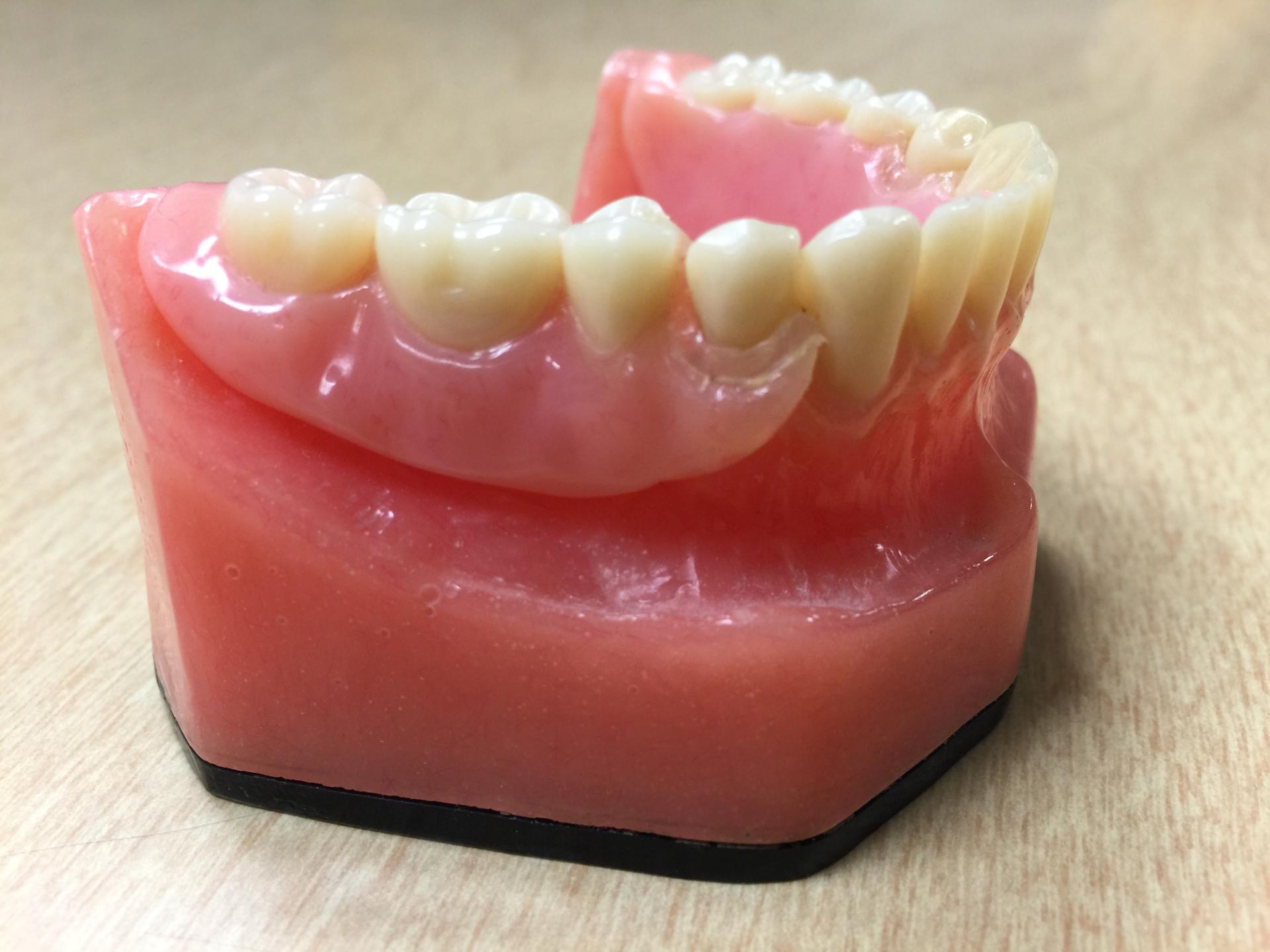 Photo of denture model