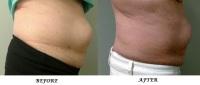 cellulite reduction, skin tightening