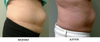 cellulite reduction, skin tightening