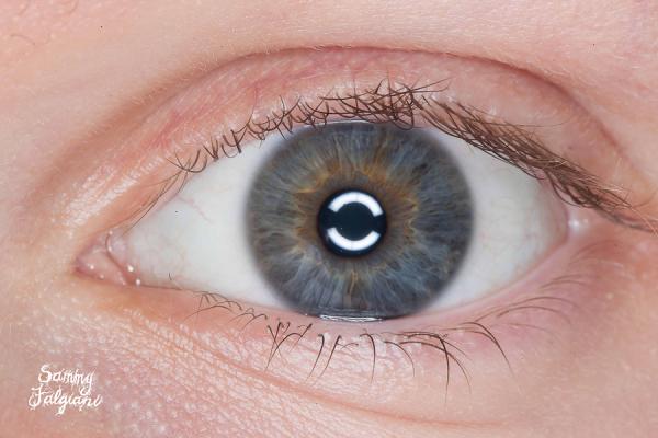 iris, ring flash, anterior segment, alex hannan