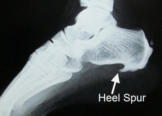 Pain in the heel?