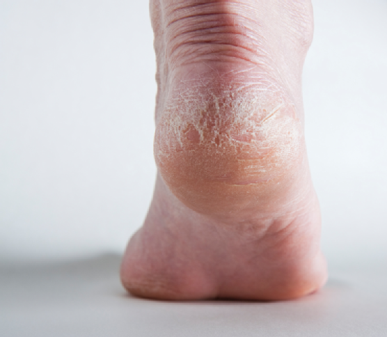 What causes callous?
