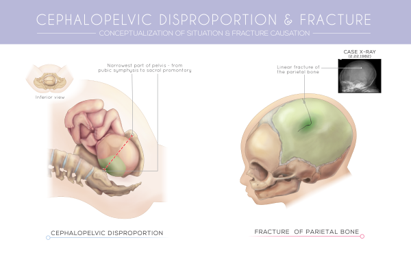 Medical Legal Illustrations for the Defense (Panel 3)