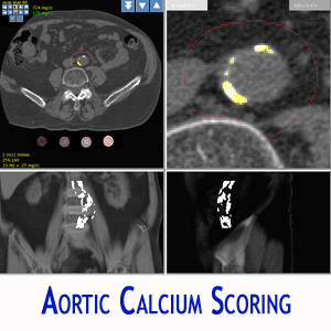 AORTIC CALCIUM SCORING