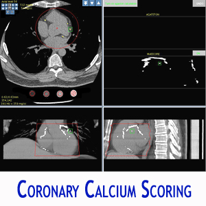 CORONARY CALCIUM SCORING