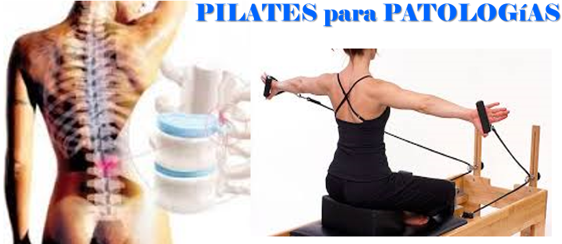 Pilates para Patologías