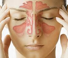 Sinus disease is painful and should be treated.
