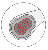Peripheral Artery Disease, PAD