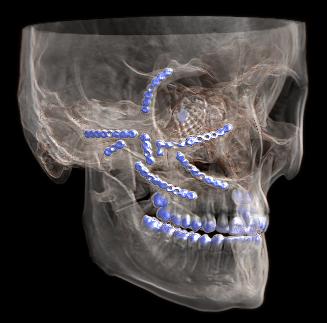 Ben Gurney Maxillofacial Surgeon