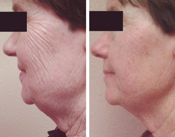 Non-Invasive         Face & Neck Lift