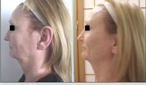 Non-Invasive         Neck & Facelift