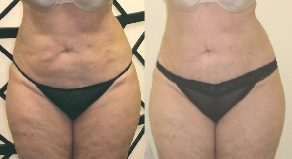 Cellulite + Fat Reduction