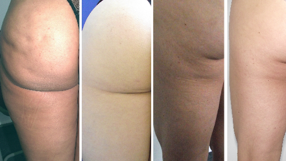 Thigh Blaster + Cellulite Reduction