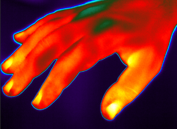 Hand Thermal Image