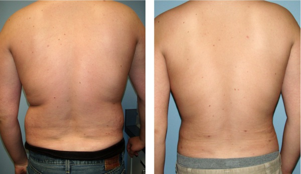 Large Volume Liposuction @ Dr. Brian Evans Plastic Surgery