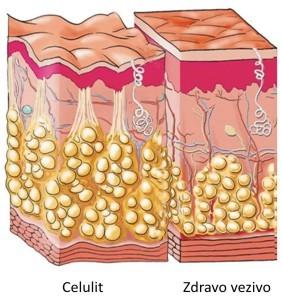 Prokaire tretman za celulit