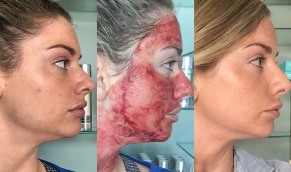 PRP Treatment only $550
