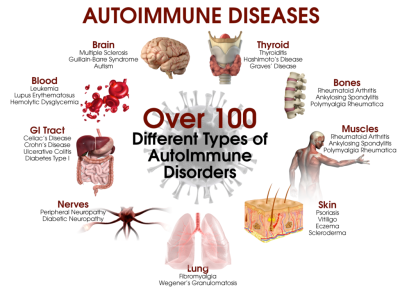 A brief history of autoimmune illness and its relation to mental health