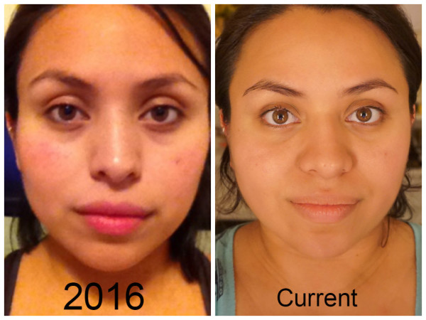 Skin Care Healthier and Youthful Appearance | What works for me