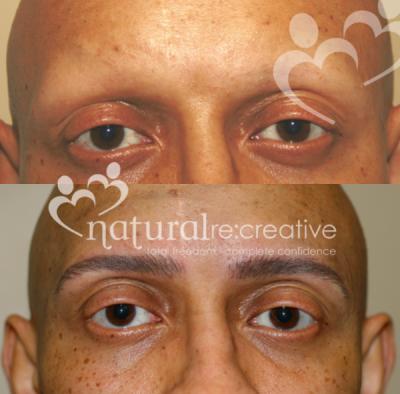 Men's Eyebrow Re:construction