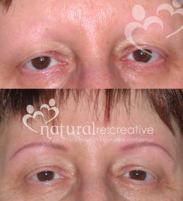 Eyebrows for Alopecia